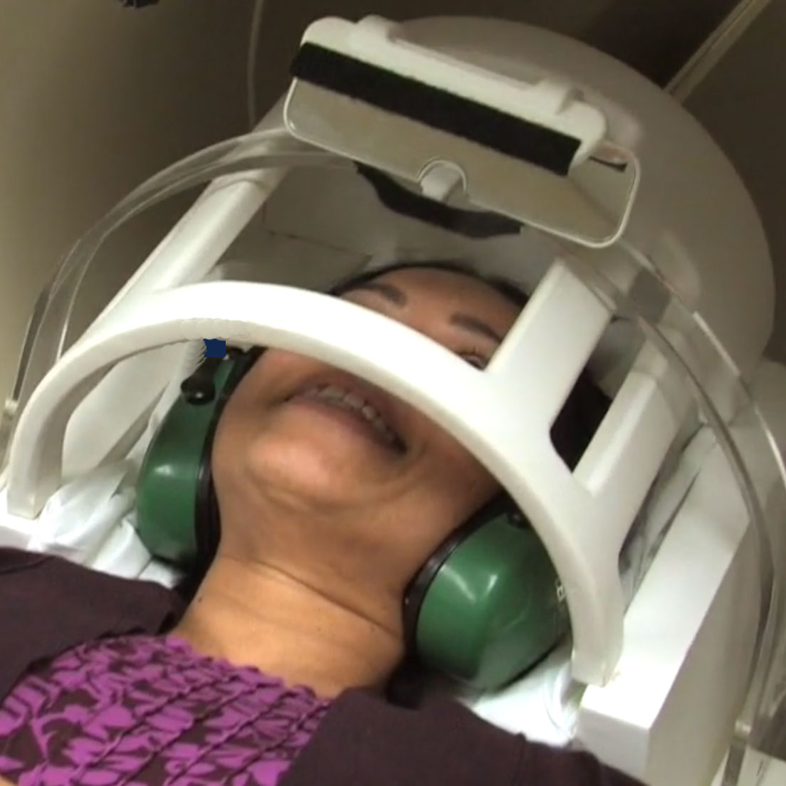 head placed in a brace in an MRI machine